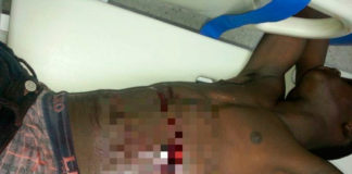 Rouison Luis, 26 años, recibió una herida en el hemitorax izquierdo con entrada y salida